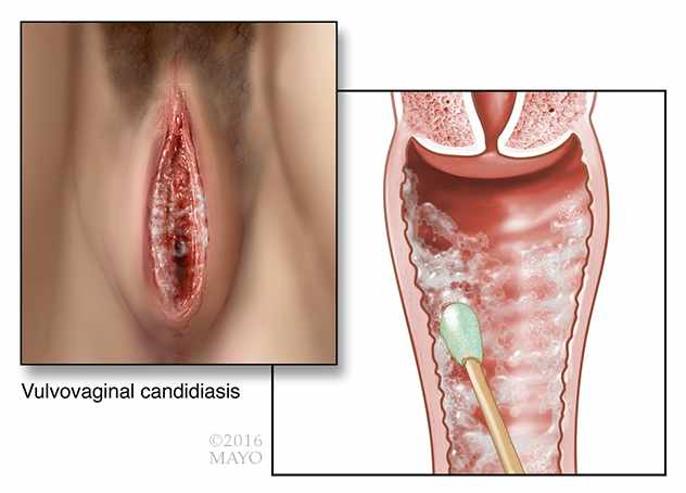 medical illustration of vaginal yeast infection vulvovaginal-candidiasis