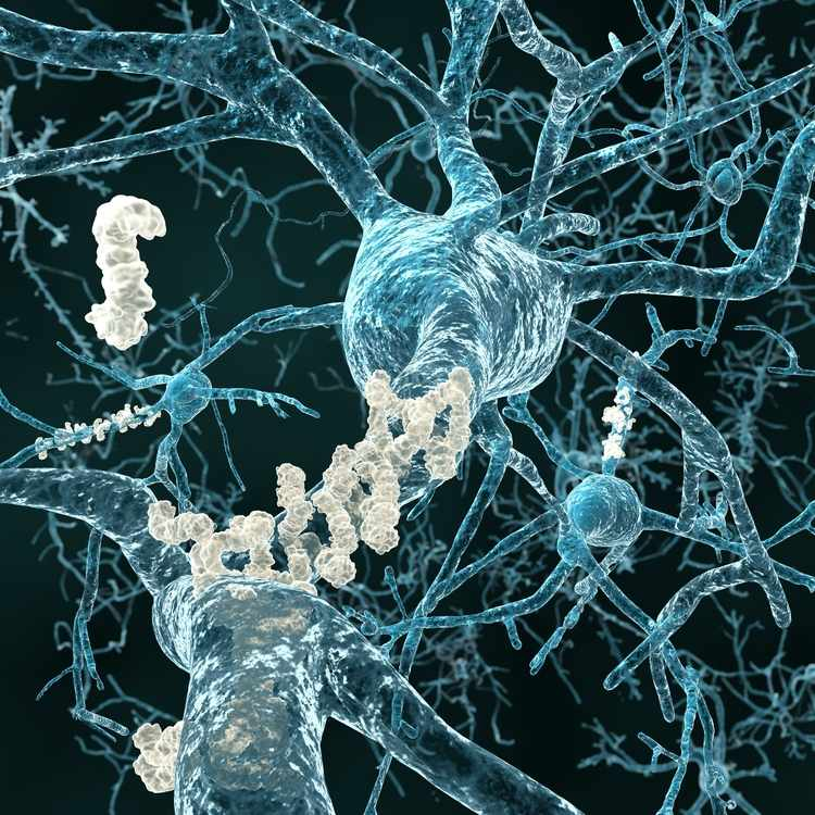 Alzheimer's medical illustration of amyloid plaques