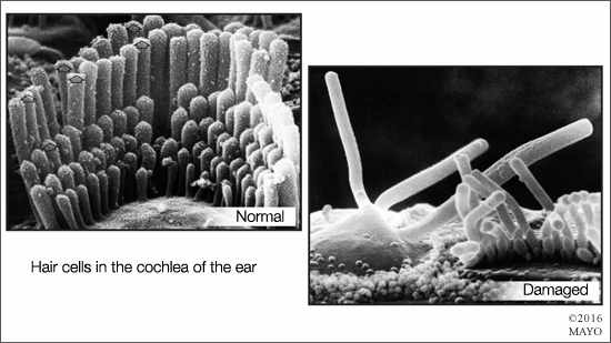 a medical illustration of normal hair cells in the ear and ones that have been damaged, resulting in hearing loss