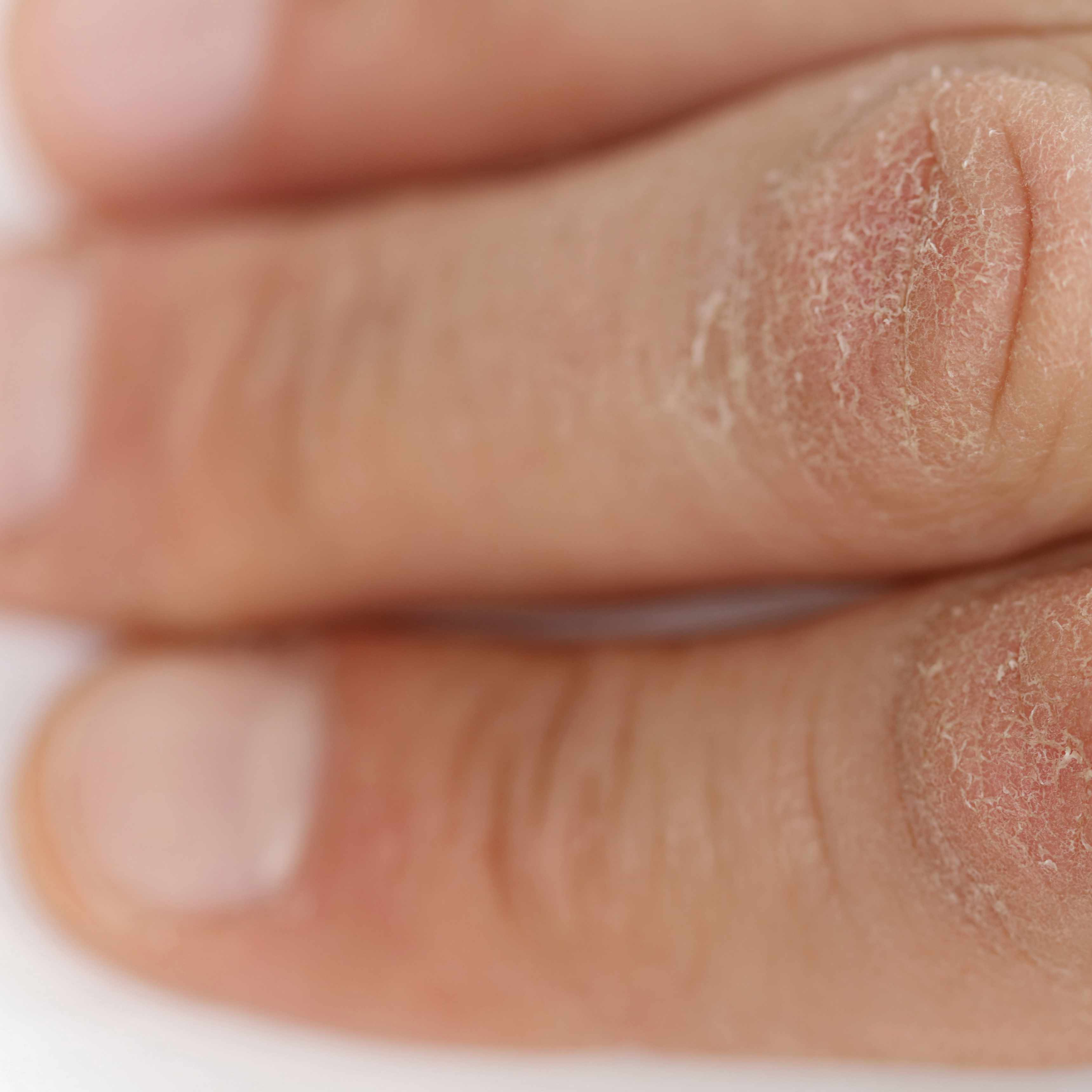 a persons fingers with dry cracked skin