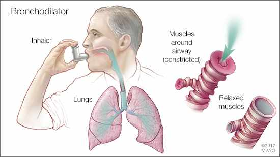 a medical illustration of a man using a bronchodilator to relieve constricted airways