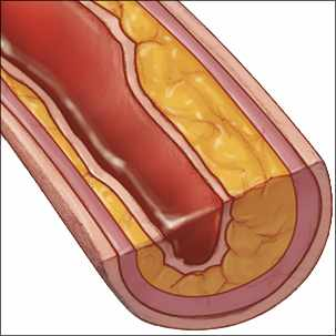 a medical illustration of an artery with peripheral artery disease (PAD)