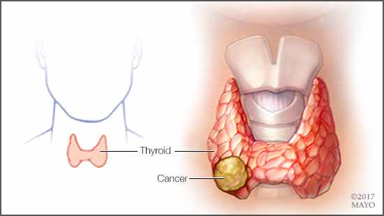 Ilustración médica del cáncer de tiroides