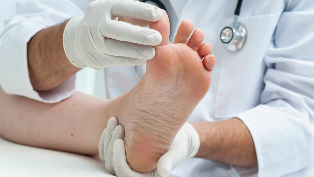 a medical person examining a person's foot for infection or athlete's foot
