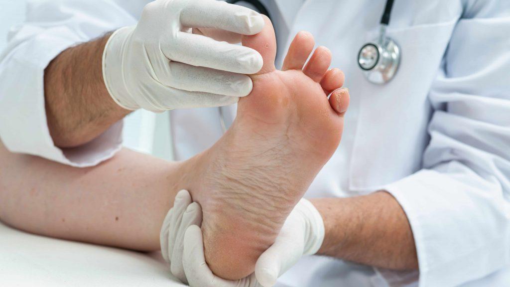 Un profesional de la salud examina el pie de alguien que tiene una infección o pie de atleta