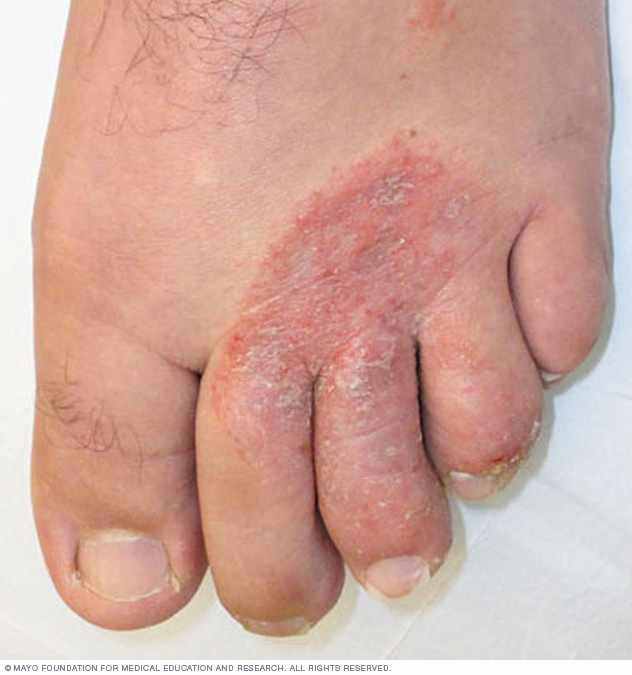 Home Remedies: Fighting foot fungus – Mayo Clinic News Network