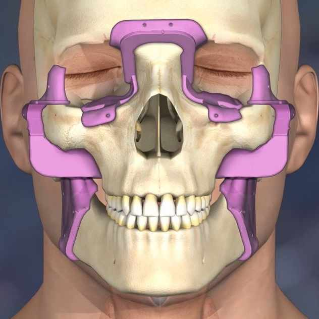 Medical illustration of face transplant