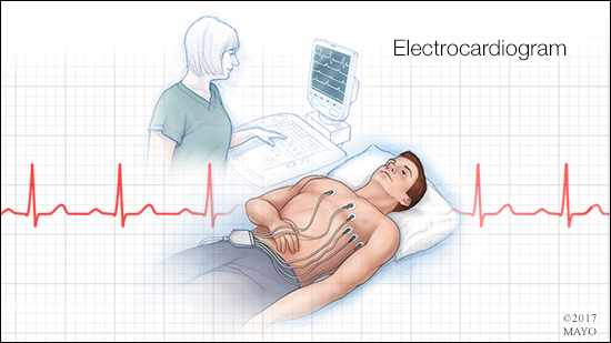 a medical illustration of an electrocardiogram in progress
