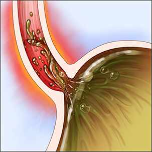 a medical illustration of gastroesophageal reflux disease