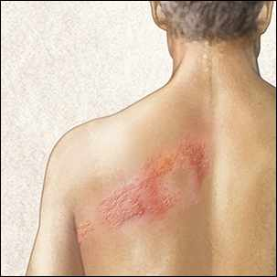 a medical illustration of the shingles rash on a man's back