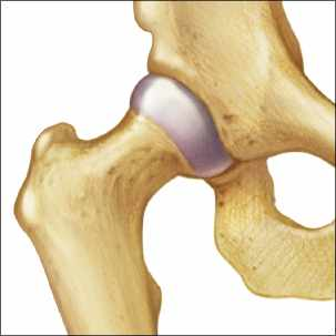 a medical illustration of a normal hip joint