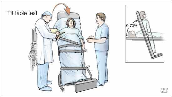 Ilustración médica del estudio con la mesa basculante para el diagnóstico de taquicardia postural ortostática.