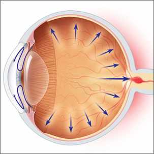 a medical illustration of glaucoma