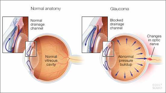 mayo clinic q and a glaucoma are you at risk mayo clinic news