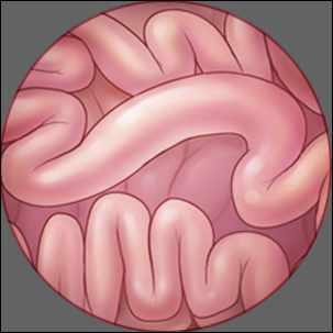a medical illustration of small bowel cancer