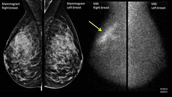 Medical illustration of the difference in appearance between a mammogram image and that of molecular breast imaging (MBI)