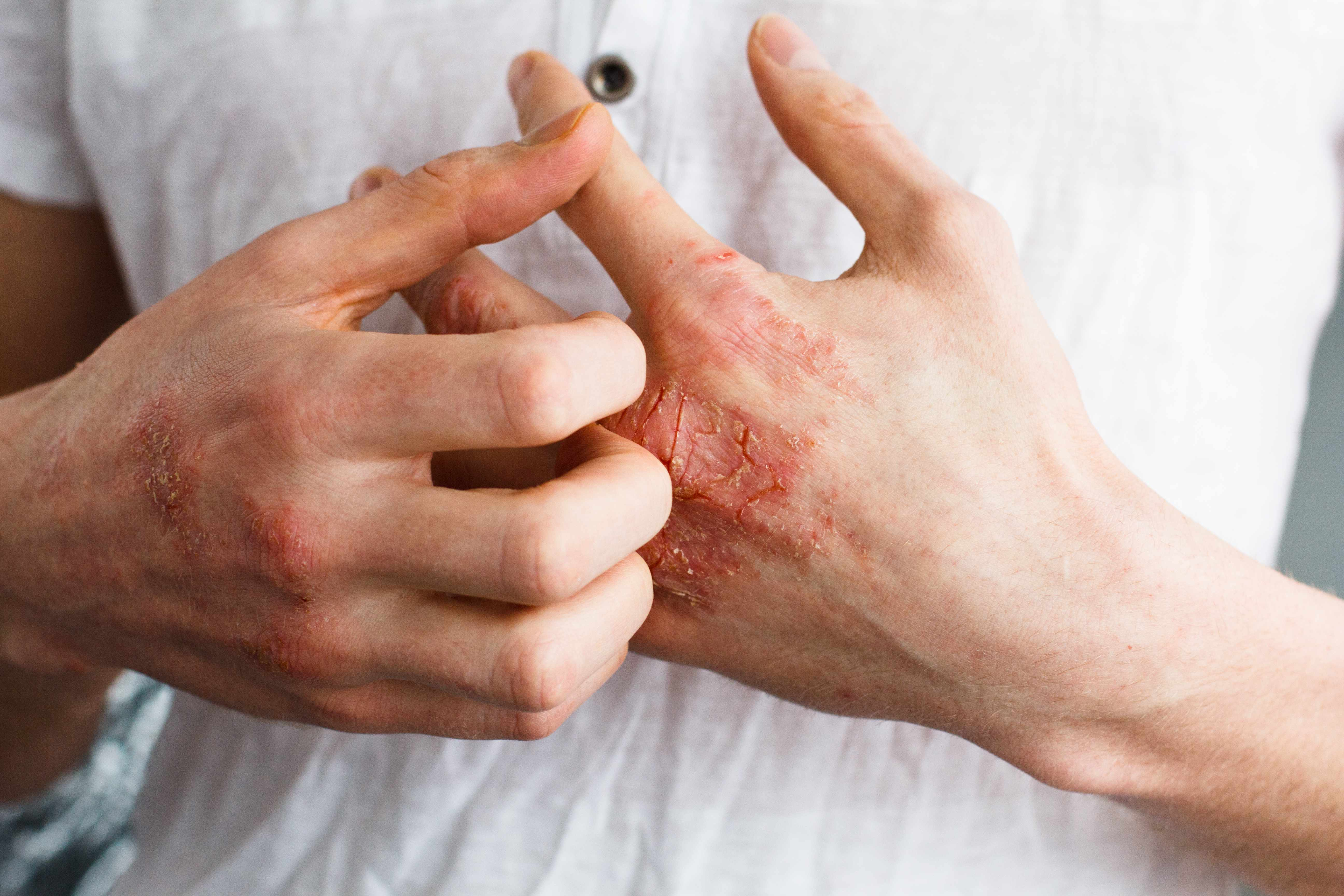 Home Remedies: The itchy irritation of eczema – Mayo Clinic