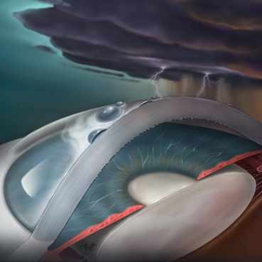 medical illustration of an eye with a storm cloud above it