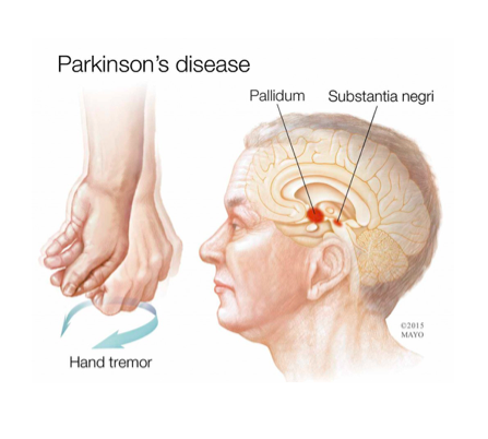 a medical illustration of Parkinson's disease