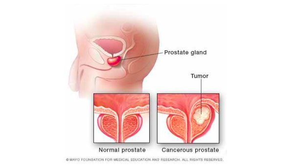 Medical illustration of normal prostate and cancerous prostate