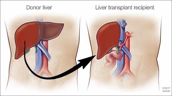Ilustración médica de un hígado donado y de un trasplante de hígado en curso