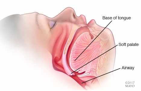 Home Remedies: Stop the snoring – Mayo Clinic News Network