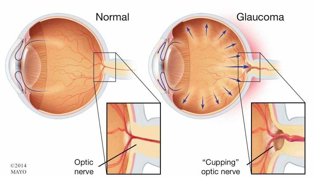 a medical illustration of normal eye anatomy and one with glaucoma