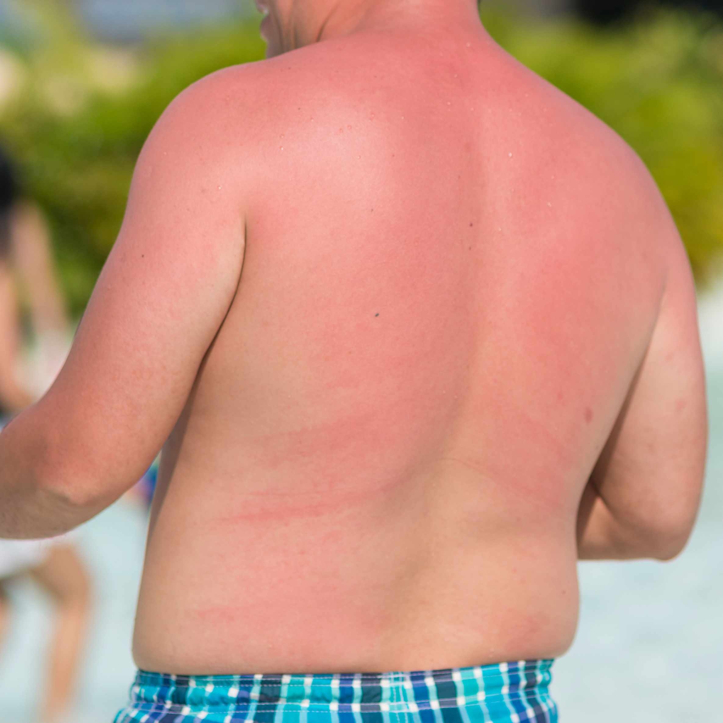 a man on the beach in a bathing suit with a bare sunburned back