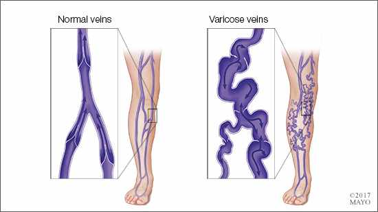a medical illustration of a leg with normal veins and one with varicose veins