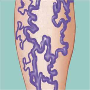 a medical illustration of a leg with varicose veins