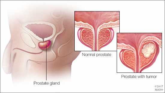 Ilustración médica de una próstata normal y otra con un tumor