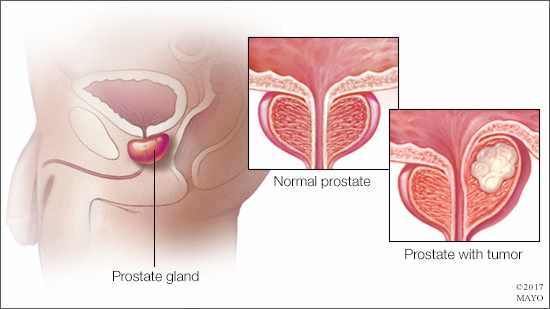 a medical illustration of a normal prostate and one with a tumor