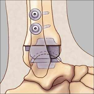 a medical illustration of ankle replacement