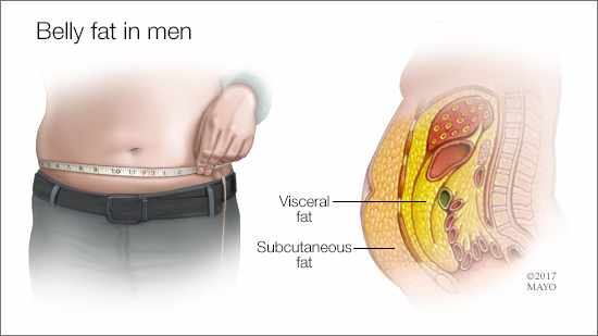 a medical illustration of belly fat in men