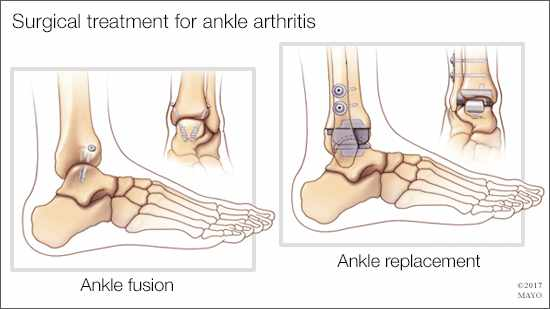 a medical illustration of surgical treatments - ankle fusion and ankle replacement - for ankle arthritis
