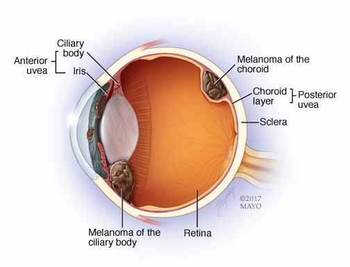 illustration of eye melanoma