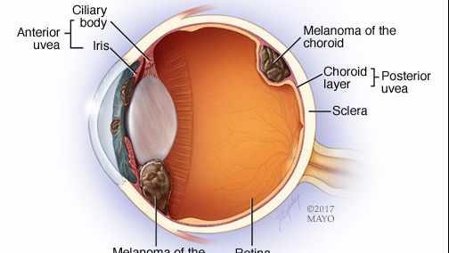 Ilustración del melanoma ocular