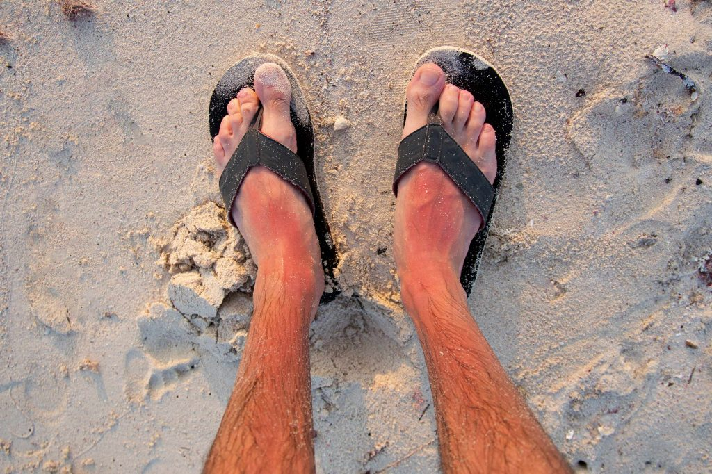 an overhead photo of a man's sunburned lower legs and feet in flip-flops, on the beach