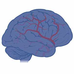 an infographic of brain vascular malformation