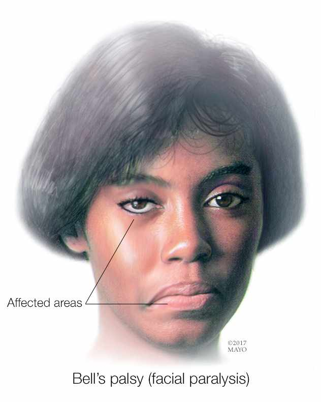 a medical illustration of an African American woman with Bell's palsy facial paralysis