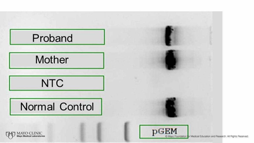 a PCR gel picture from the PathWays blog