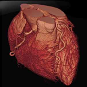a medical illustration of a CT heart scan image
