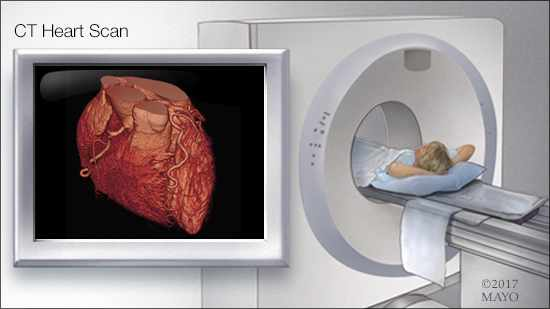 a medical illustration of a CT heart scan in progress