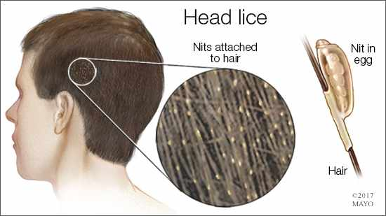 a medical illustration of head lice and the way they attach to human hair