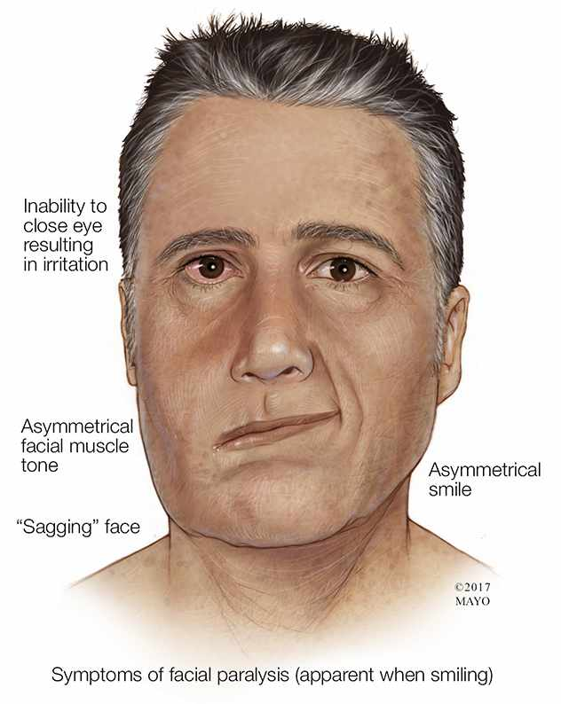 a medical illustration of a man with facial paralysis