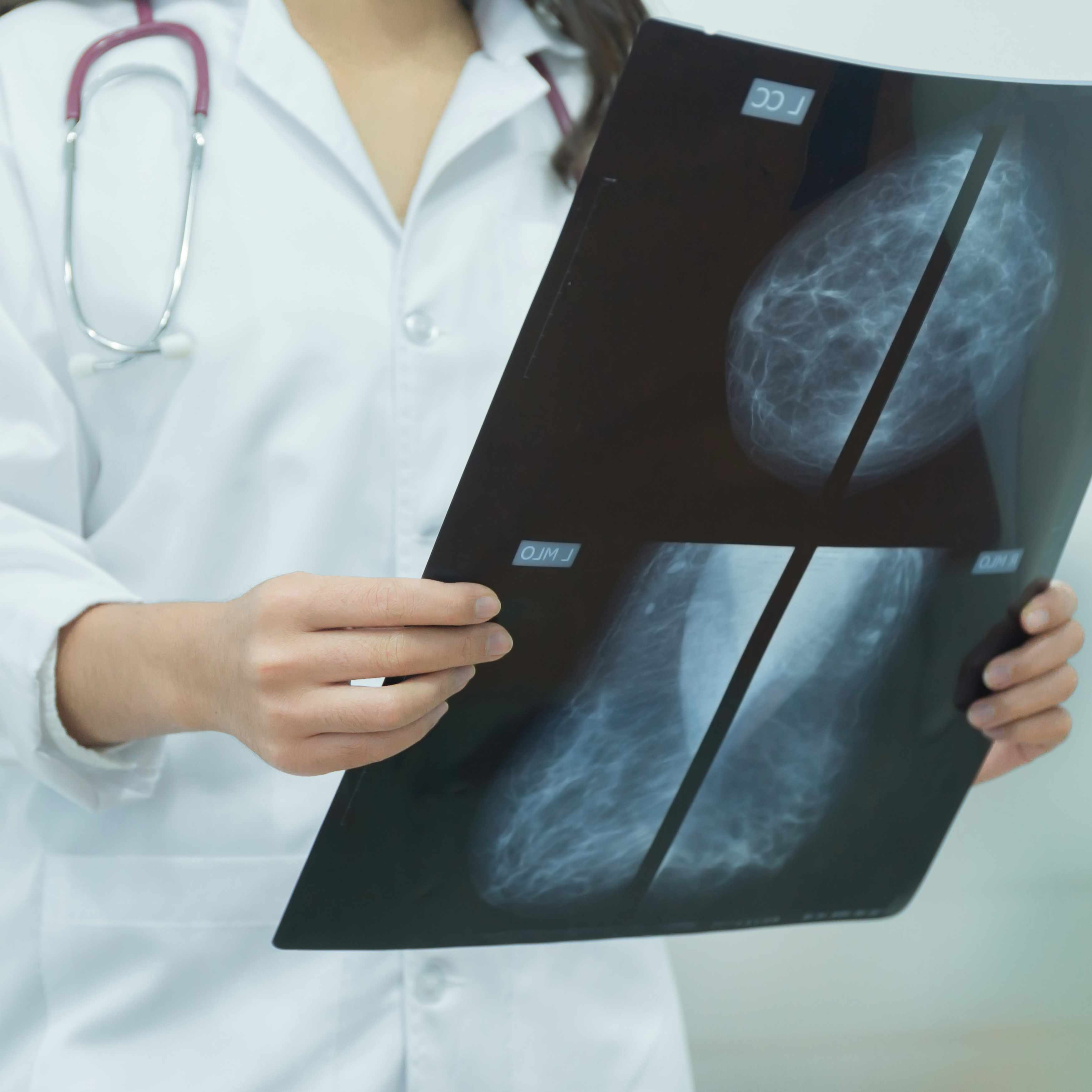 Mammogram film image in female doctor hands