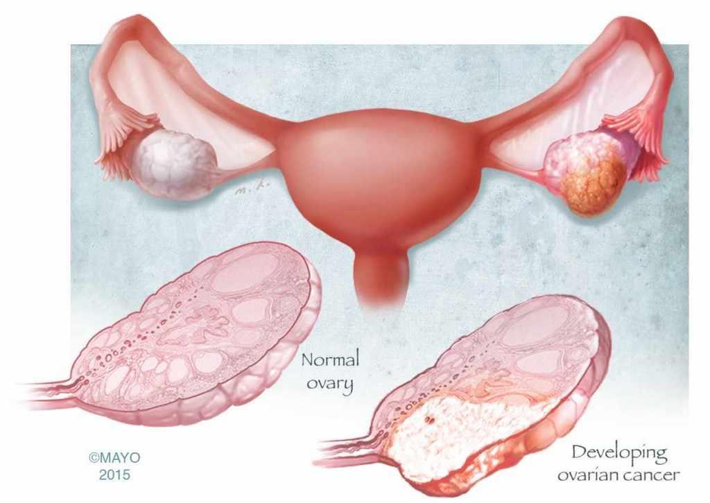 Medical illustration of ovarian cancer