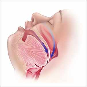 a medical illustration of a blocked airway