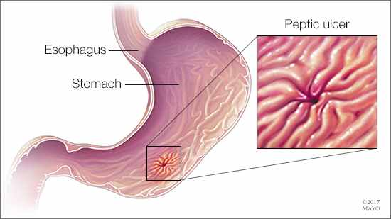 a medical illustration of an esophagus, stomach and peptic ulcer