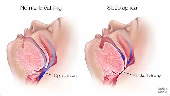 a medical illustration of normal breathing with an open airway, and sleep apnea with a blocked airway
